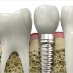 Implantes y dientes en un sólo día